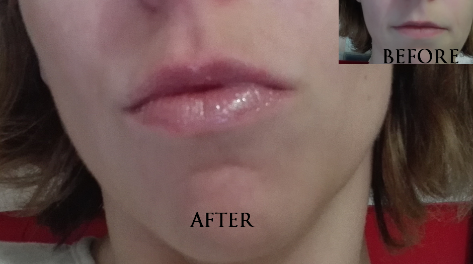 lips mother pucker b4 after
