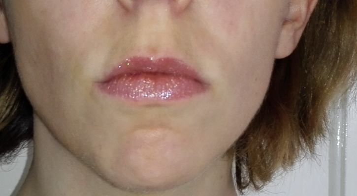 This was after 1 full week of using the Soap and Glory Sexy Mother Pucker gloss