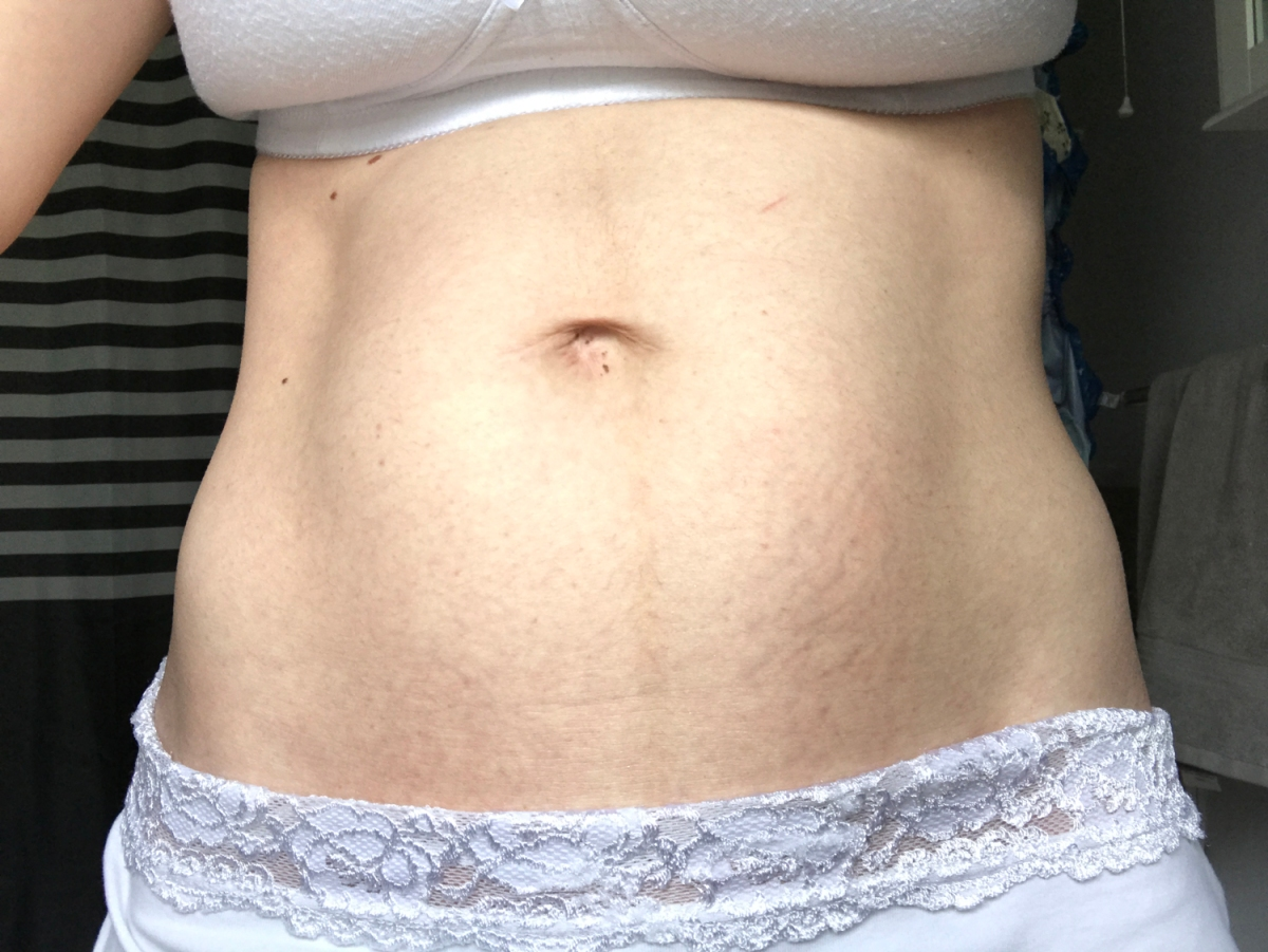 How I avoided stretch marks with pregnancy and got rid of old stretch marks too!